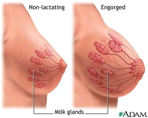 pain relief in pregnancy picture 11