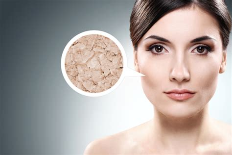 can stress dry your skin out picture 5