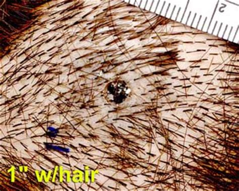 residue expelling from the scalp hair picture 6