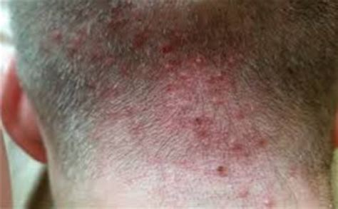 acne on the back of my head picture 5