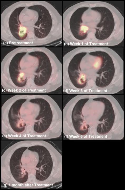 t3n2m0 colon cancer picture 14