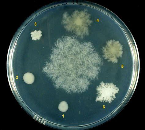 filamentous microbial strains picture 10