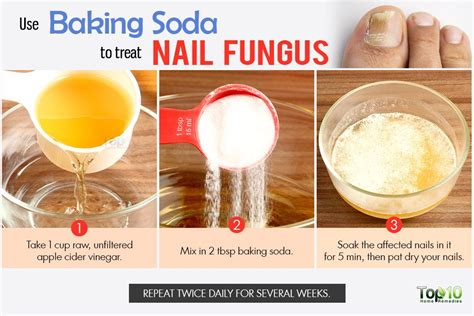 baking soda for skin picture 2