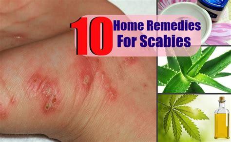 fungal skin rash picture 17