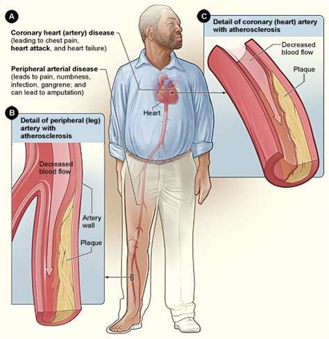 how running affects your blood flow picture 10
