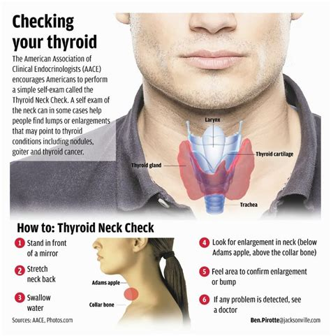 ayurveda for thyroid cancer picture 17