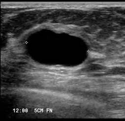 having ultra sound done on thyroid picture 11