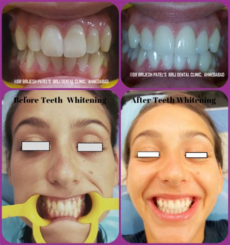 cost to whiten teeth picture 13