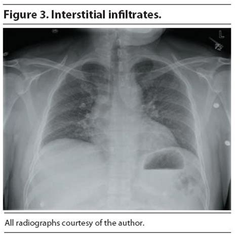 sensitivity and specificity of chest xray in diagnosing bacterial pneumonia picture 5