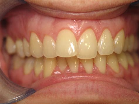front teeth picture 6