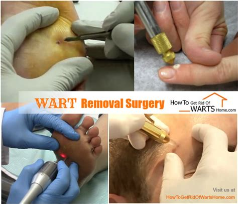 natural remedy for wart removal on lip picture 8