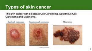 cure skin cancer on your back picture 9