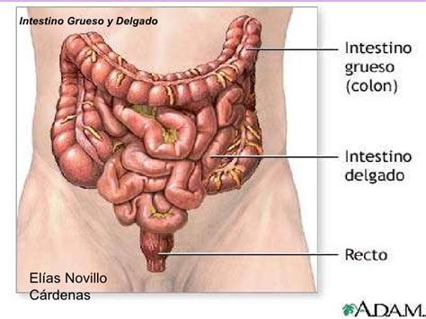 irritable bowel syndrom symptoms picture 7