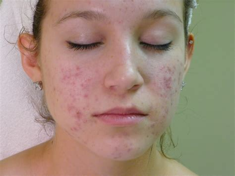 acne only on face picture 1