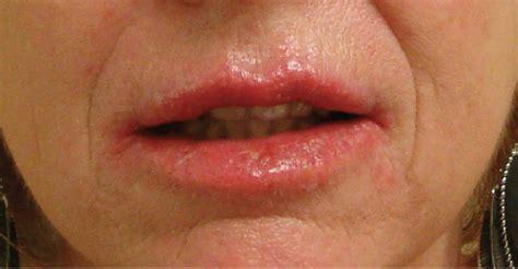 lip fungus picture 9