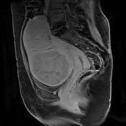 insufficient uterine enlargement picture 9