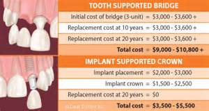 cost of teeth implants picture 1