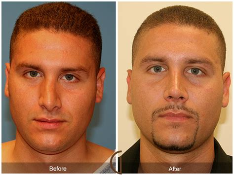 cost of male nose enhancement in the philippines picture 14