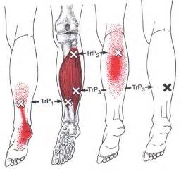 calf muscle pain picture 17
