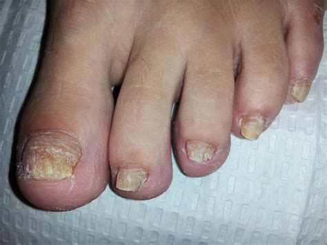 foot fungus picture 6