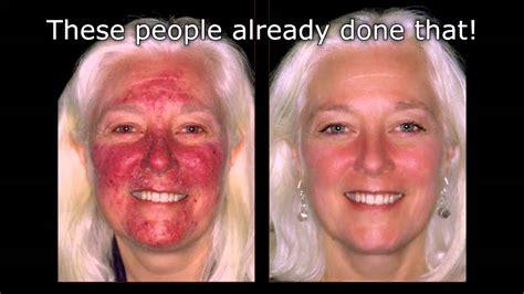 light treatment acne picture 1