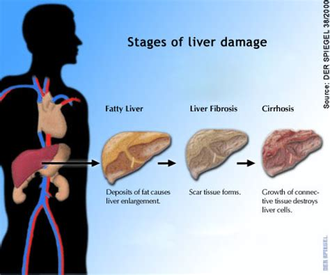 causes of liver failure picture 6