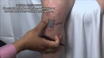 knee joint injection and emedicine picture 6