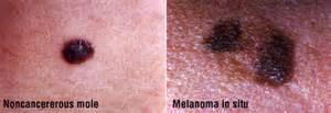 skin cancer on chest pictures picture 1