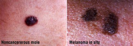 acbd diagnose skin mole picture 14
