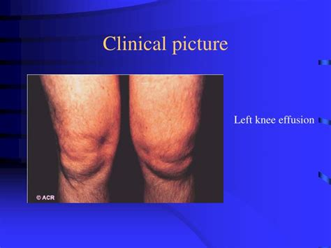 ana antiswollen muscle antimitochondrial sero picture 9