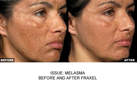 fraxel for acne scars picture 9