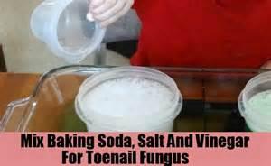 spilanthes-usnea, toenail fungus, vinegar picture 18