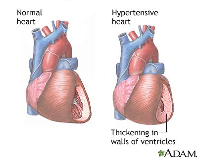 hardening of the heart muscle picture 1