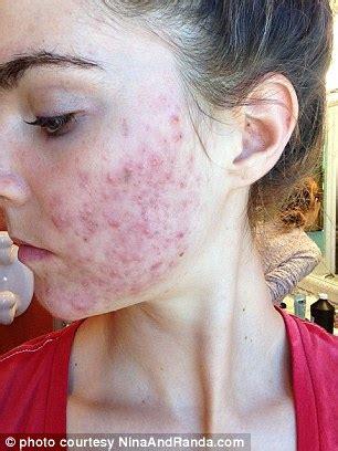 pasta + no acne picture 3