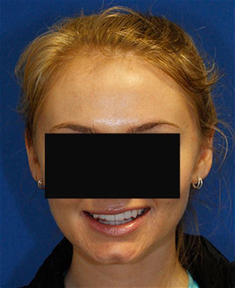 skincare pro dr. youn dimple battling treatments picture 18