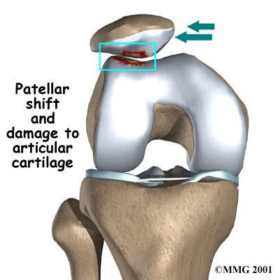 femoral joint pain picture 1