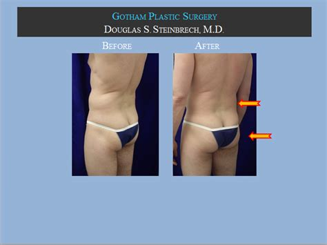 new york, penile fat injections by female dr. picture 6