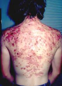 painful back acne picture 1