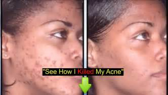 where can i buy f2f for blemishes and picture 19
