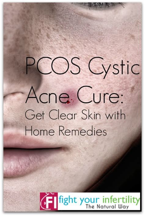 acne cyst preparation h picture 5
