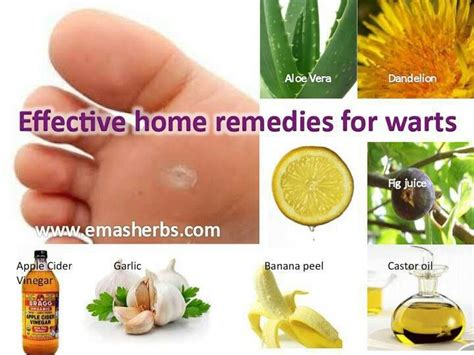 natural wart removal picture 1