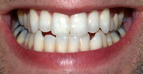 can weak spots in teeth be fixed picture 1