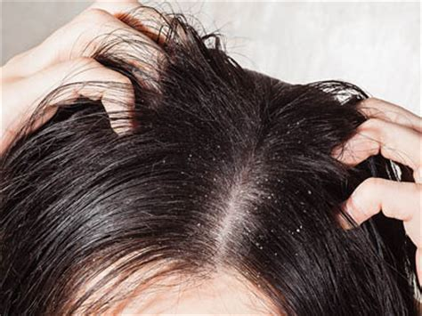 can stress cause hair to fall ff picture 11