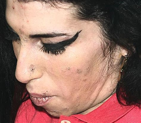 crystal meth and acne picture 6