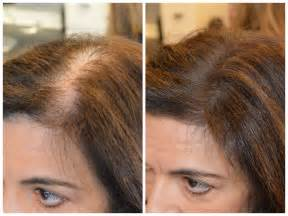 correct hair thinning in women picture 17