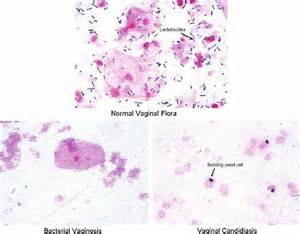bacterial vaginosis research picture 1