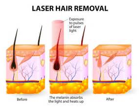 hair follicle removal picture 2