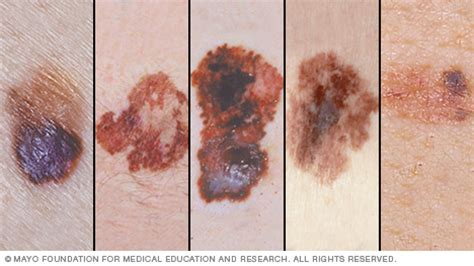 free skin cancer clinic picture 1