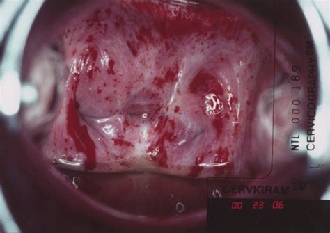 tumor outside of colon picture 10