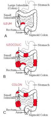 Intestinal pseudo obstruction picture 13